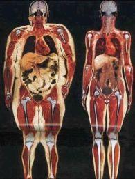 excessive fat
